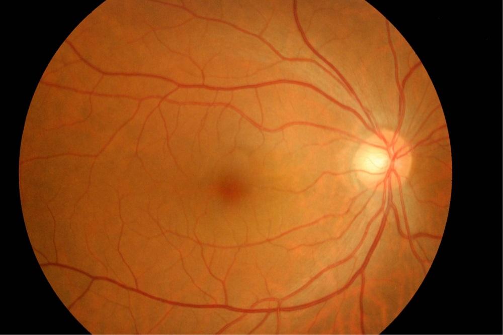 網膜色素変性2